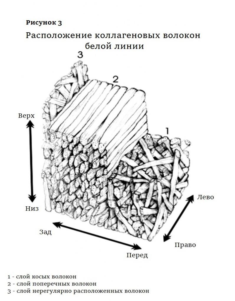 Рисунок 3 диастаз.jpg